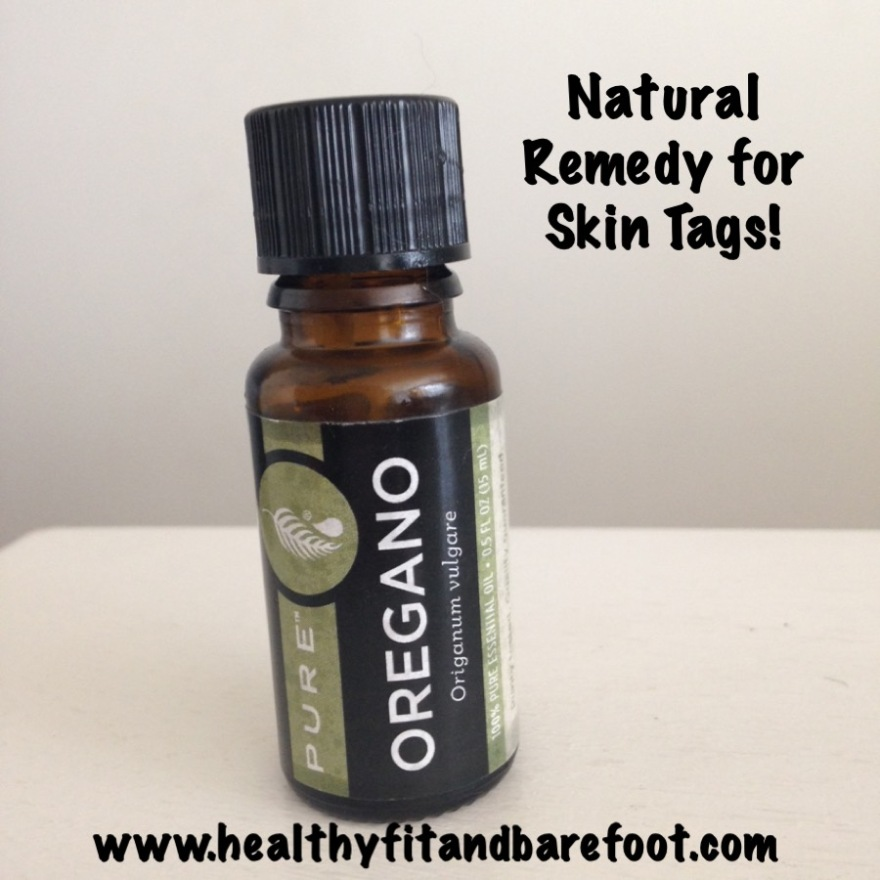 Oregano Essential Oil for Skin Tag Removal | Healthy, Fit & Barefoot!